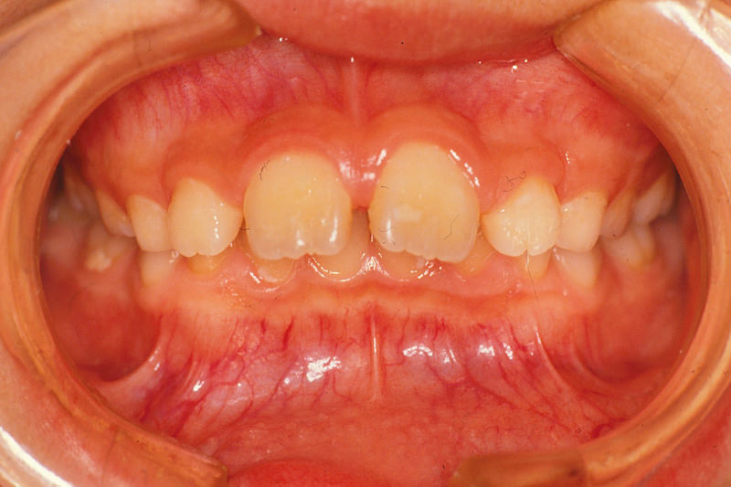 出っ歯(上顎前突)症例①Before