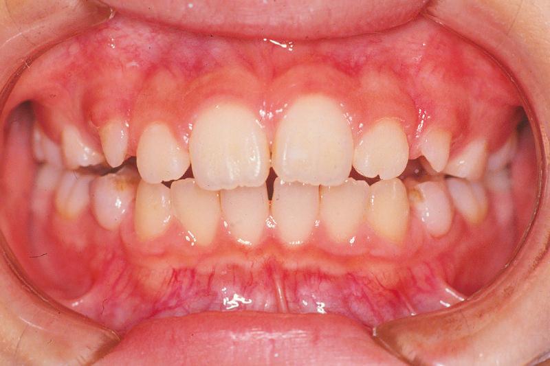 出っ歯(上顎前突)症例①治療中