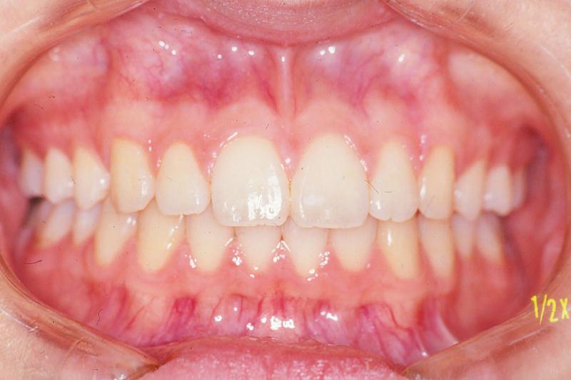 出っ歯(上顎前突)症例①After