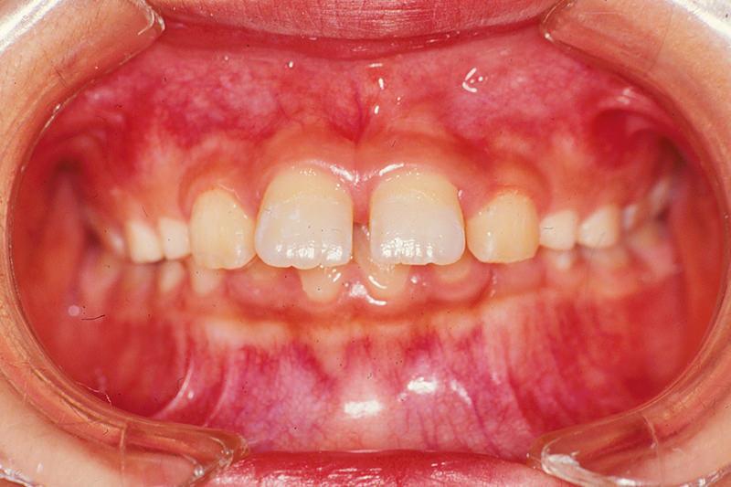 出っ歯(上顎前突)症例②Before