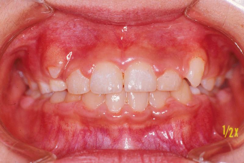 出っ歯(上顎前突)症例②治療中