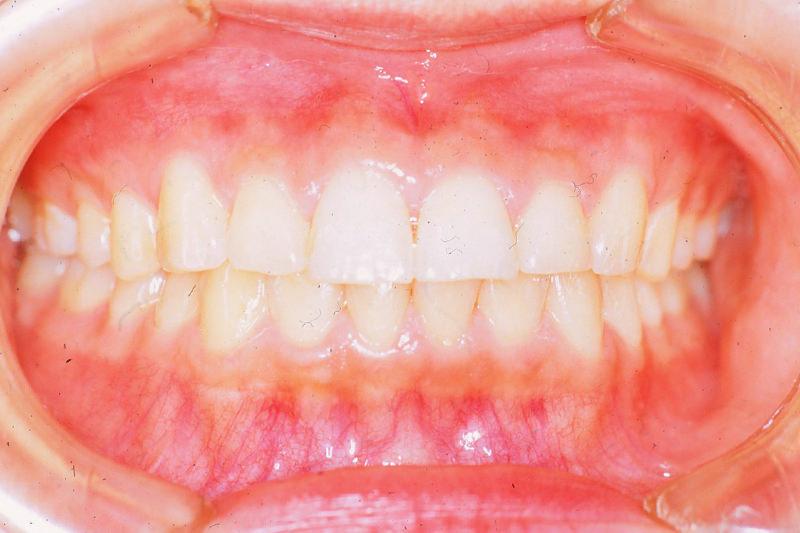 出っ歯(上顎前突)症例②After