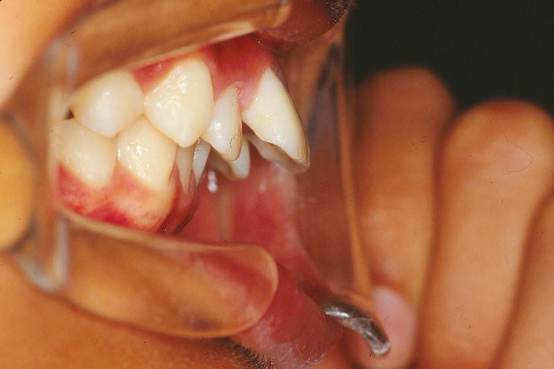 出っ歯(上顎前突)症例③Before
