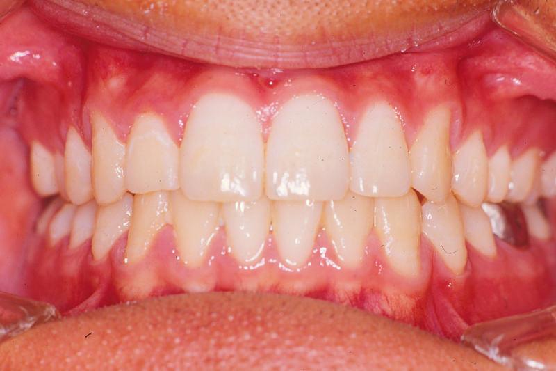 出っ歯(上顎前突)症例③After