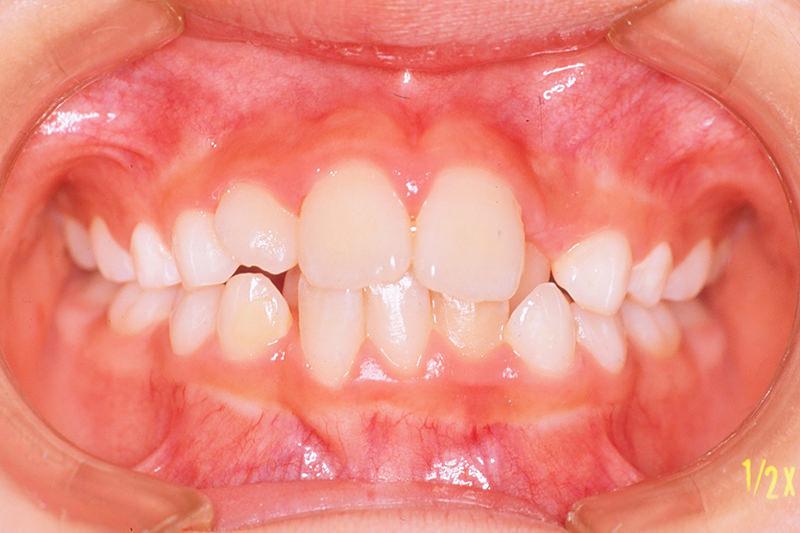 ガタガタの歯並び(叢生)症例①Before