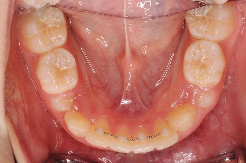 ガタガタの歯並び(叢生)症例①After