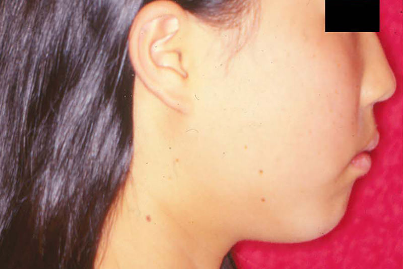 ガタガタの歯並び(叢生)症例②Before