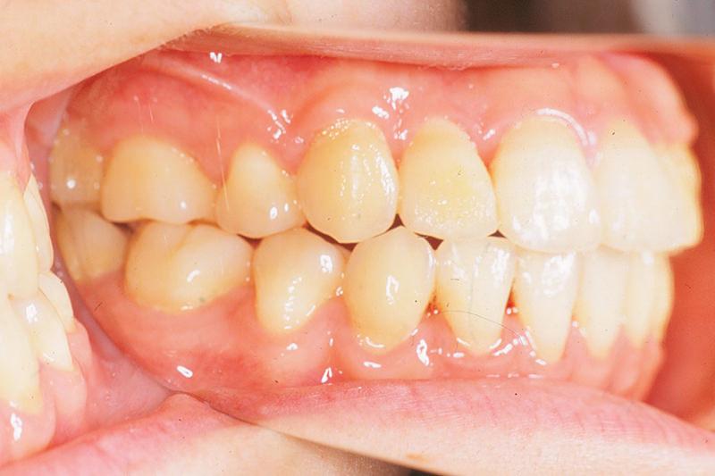 ガタガタの歯並び(叢生)症例②After