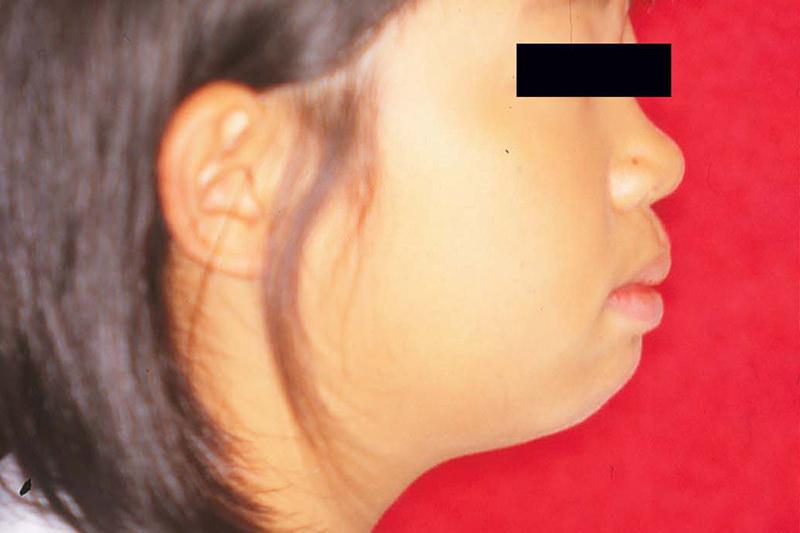 開咬の症例①Before