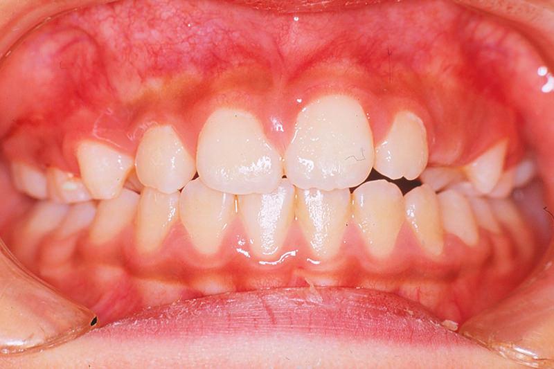 開咬の症例①9ヵ月後