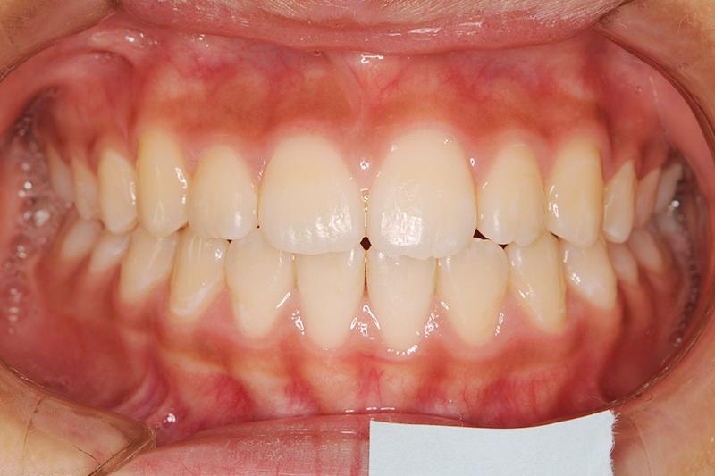 開咬の症例①After