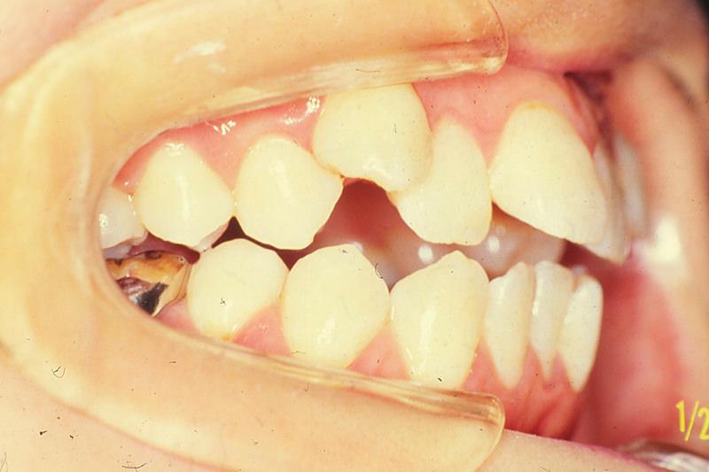 開咬の症例②Before