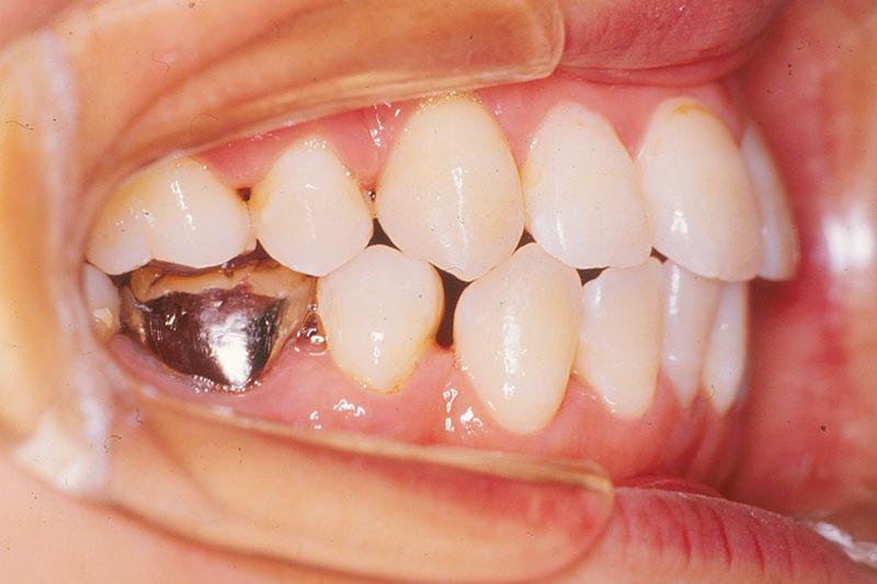 開咬の症例②After