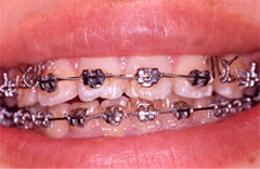 歯の表の面にワイヤーを通す装置
