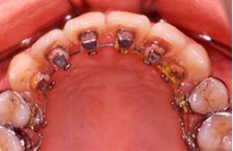 舌側矯正装置